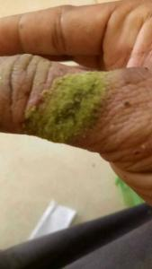 cut-thumb-kratom-2
